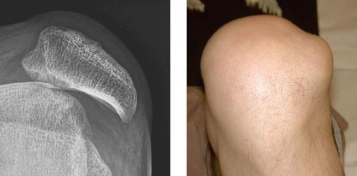 Patelladysplasie